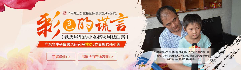 广州最好的白癜风医院官网